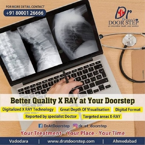 Best X Ray Centres in Ahmedabad | Doctor at Doorstep